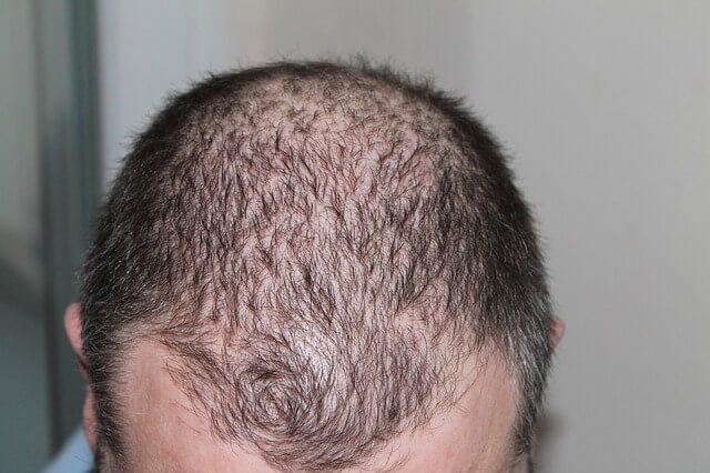 Rambut Rontok Atasi Dengan Cara Alami ini